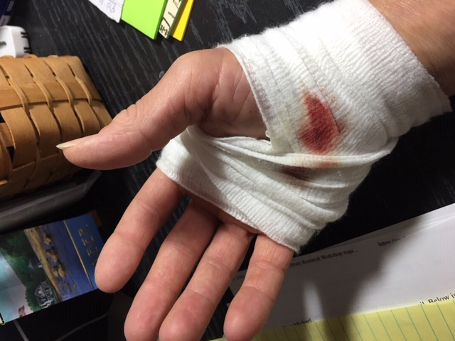 UH-OH! (nasty table saw hand injury)-hand2-jpg