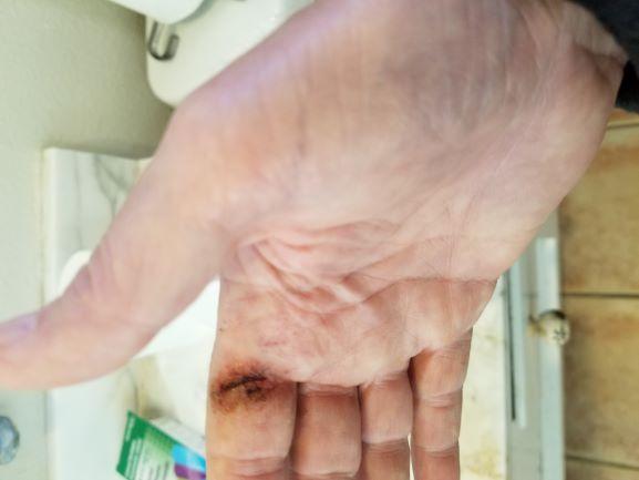 Cut my finger, Crazy Glue?-cut-small-jpg